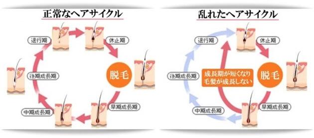 正常と乱れたヘアサイクル比較