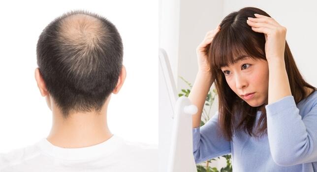 髪に悩む男女