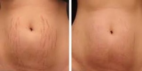 Stretch Marks Removal in Delhi by Laser Technique, Best offers