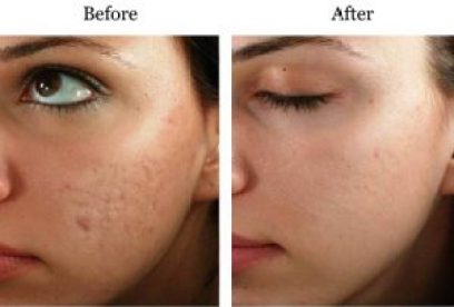 Micro-needling Best Treatment for All Skin Disorder