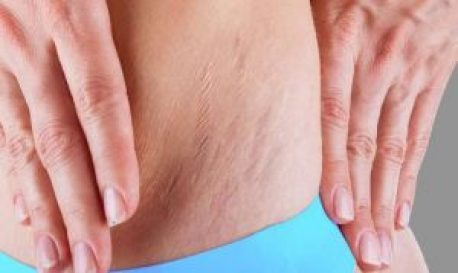 How To Remove White and Red Stretch Marks