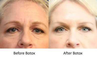 Best Non-Surgical Facial Rejuvenation Treatment
