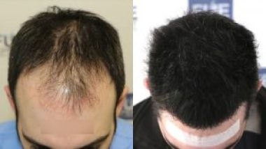 Hair Transplant Most Asked Question About The Treatment