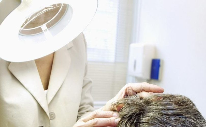 worried-about-hair-loss