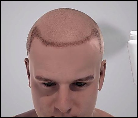 Hair Transplant Healing