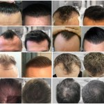 Is the Hair Loss Cure Round The Corner?