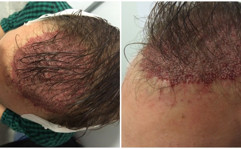 Healing After A Hair Transplant