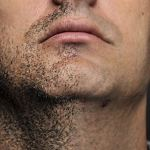 Difference Between Beard and Scalp Hair