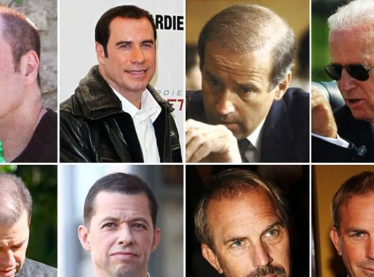 celebrities-hiding-hair-loss