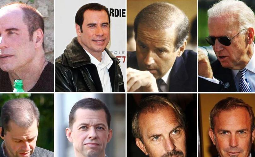 celebrities-hiding-hair-loss