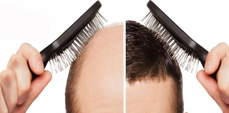 hairs-fall-daily