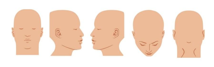 online hair loss consultation