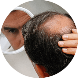 hair-transplant-hair-loss-solution