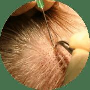 Hair Transplant Skills