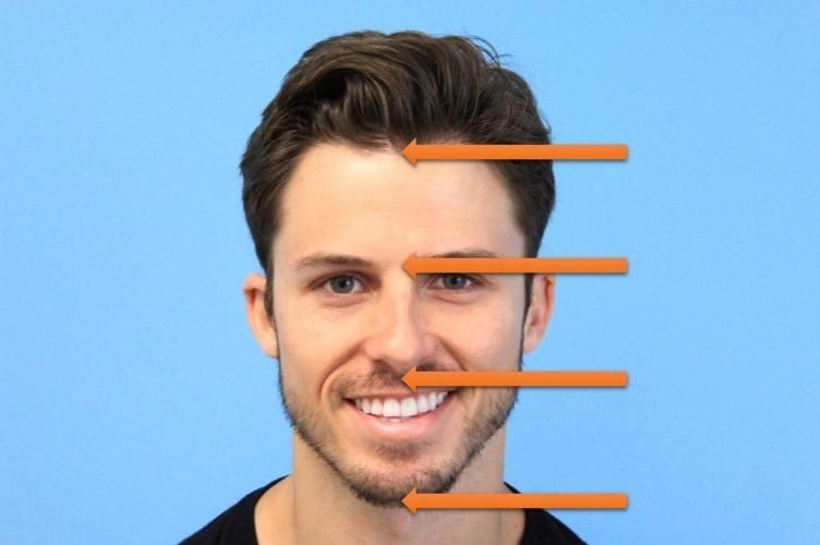 Male-Hairline-Design