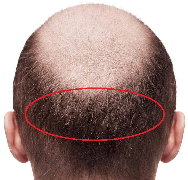 Low-Cost Hair Transplants – means low quality? Part 3