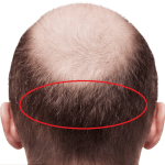 Low-Cost Hair Transplants – means low quality?