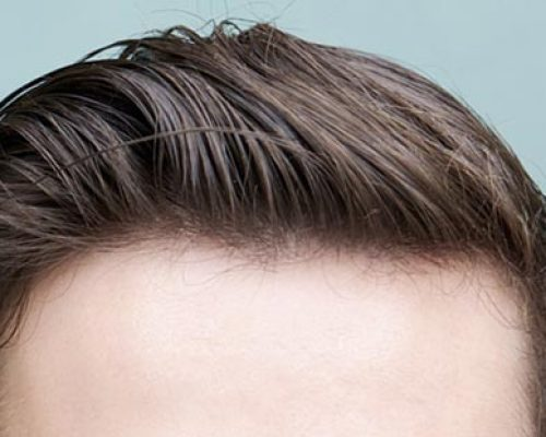 hairline-hair-transplant