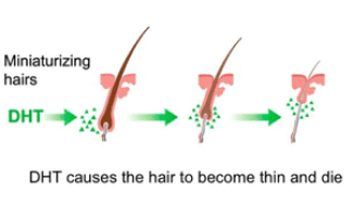 DHT-causing-hair-to-thin-male-and-female