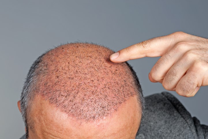 The-Facts-about-Follicular-Unit-Grafting-FUG