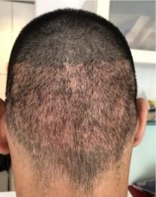 FUE Hair Transplant Shock-loss