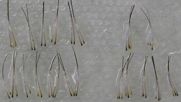 Follicular-Units- 2 and 3 hair