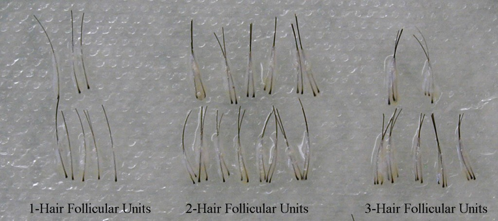 One to Three Hair Follicular Units Groupings