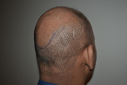 Bad FUE Hair Transplant