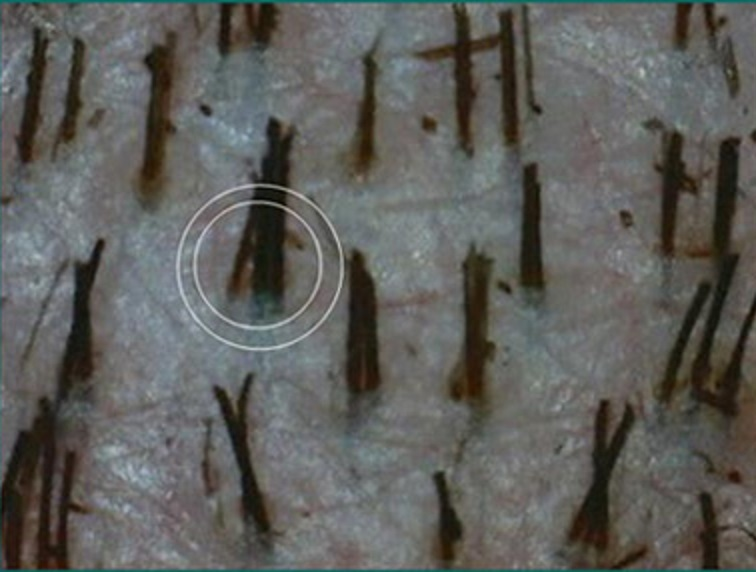 Hair follicles with 1mm diameter punch