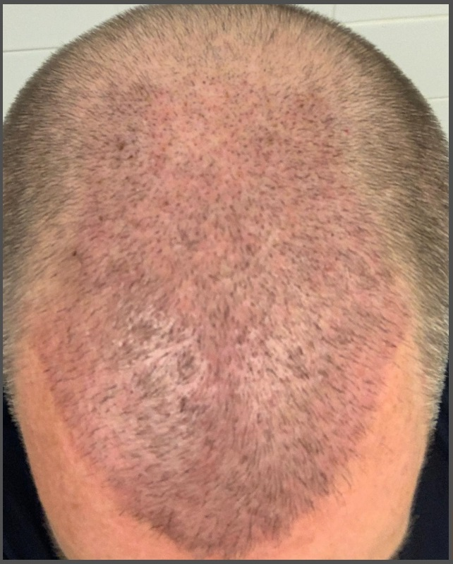 6 Days Post-Op Healing 2300 FUE