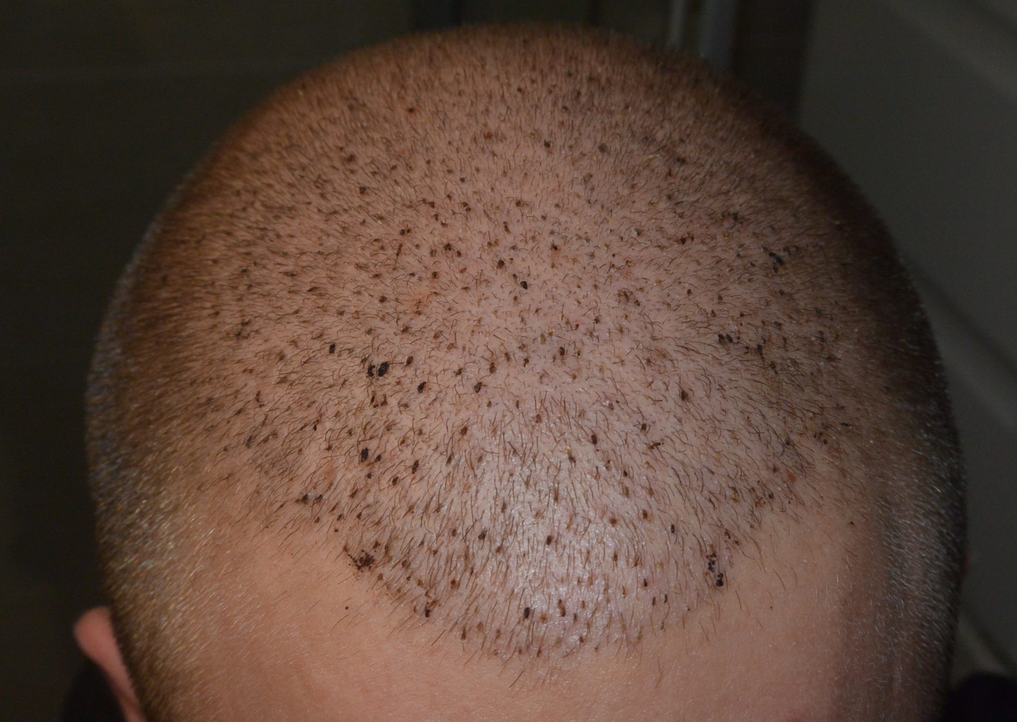 6 Days Post-Op Healing 3500 FUE