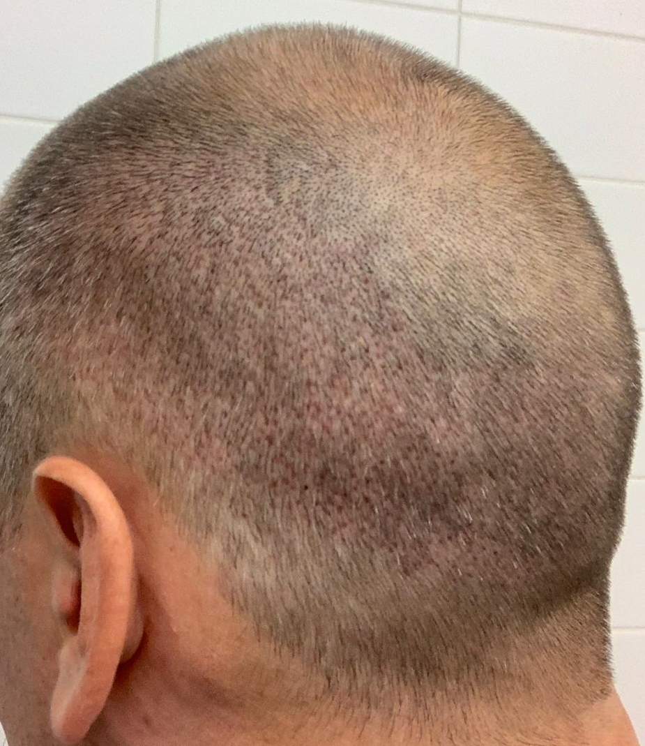 3 Day Post FUE Donor Healing