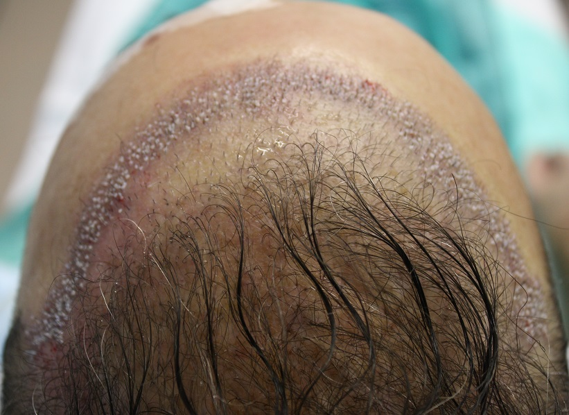 Hairline repair