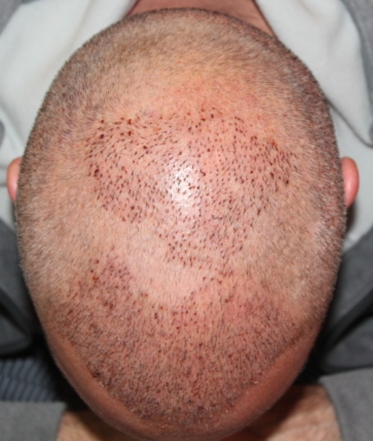 FUE/FUT hairline, frontal and crown reconstruction
