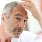 How hair transplants work