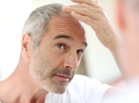 how hair transplants work