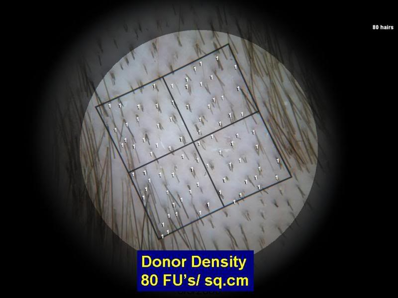 Donor Hair Density Magnified