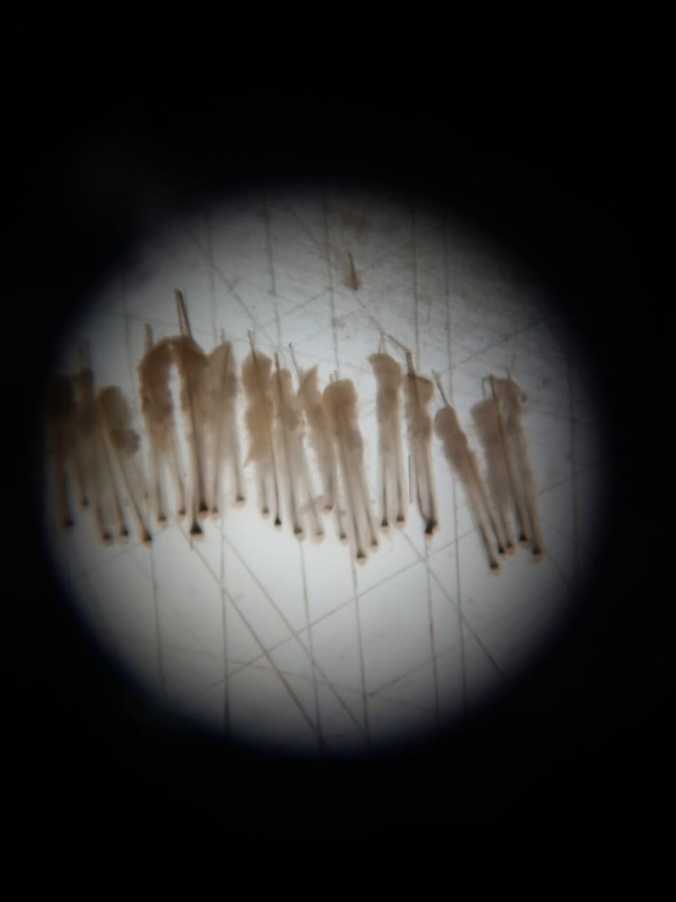 Magnified Hair Grafts