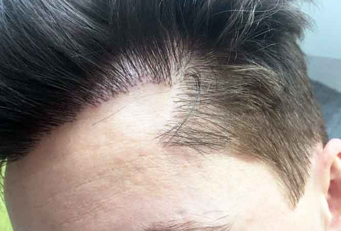 Bad Hair transplant Unnatural Hairline Result