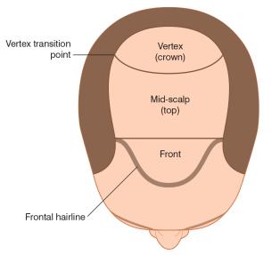 Frontal, Mid-scalp, Crown, Hair transplant