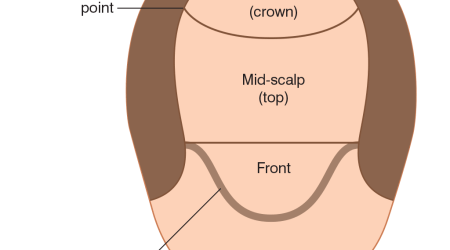 Frontal, Mid-scalp, Crown, Hair transplant
