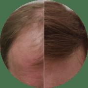 Permanent Hair Transplant Results