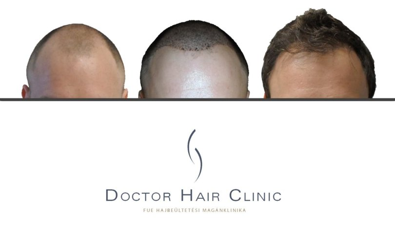 FUE hair clinic in Hungary