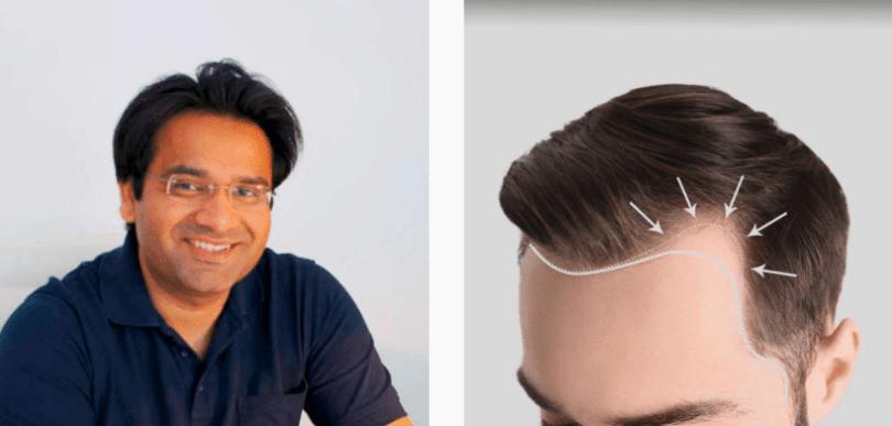 Haarpraxis Germany