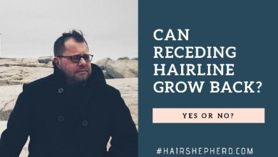 Can A Receding Hairline Grow Back Again?
