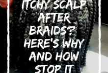 Itchy Scalp After Braids