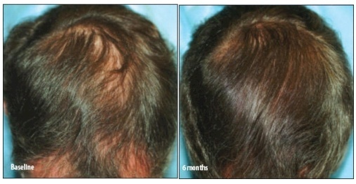 HairMax hair regrowth photos