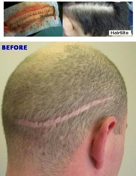 hair transplant strip scars repair