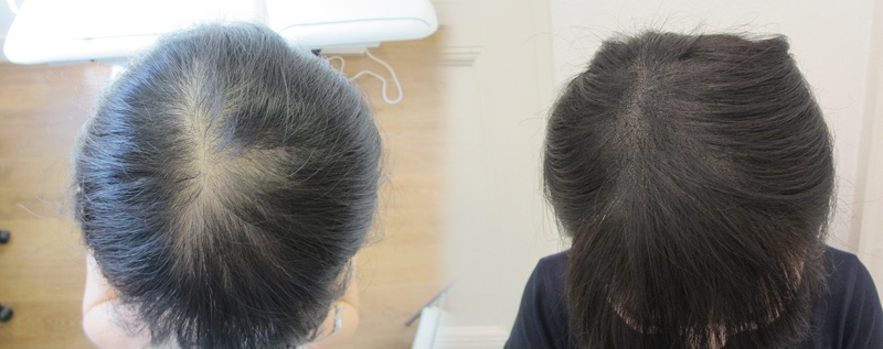 Skalp micropigmentation women hair loss london uk