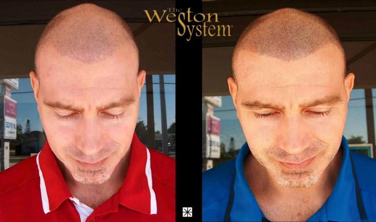 Scalp Micropigmentation Hair Loss Treatment